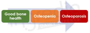 Figure 1 : Evolution de la dégradation de la santé osseuse chez l'Homme à partir de 50 ans